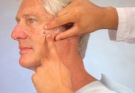 Себорейный кератоз: почему «возрастные пятна» могут быть опасны