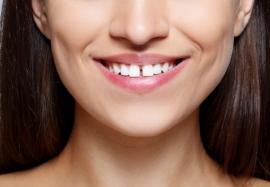 Щель между зубами: о чем она говорит
