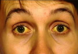 Симптомы болезней печени на лице и теле