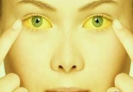 Синдром желтухи при инфекционных заболеваниях: причины и диагностика