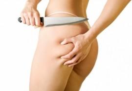 Скажи «нет» жировым отложениям: возможности инъекционной коррекции целлюлита