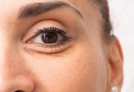 Случай из практики: коррекция носослезной борозды филлерами ГК