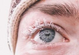 Снежная королева или последствия холодовой аллергии