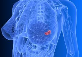 Снижение веса и риск рака молочной железы: существует ли связь