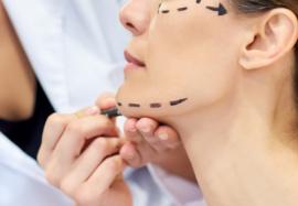 Стоит ли сделать подтяжку лица: 5 мифов о пластической хирургии