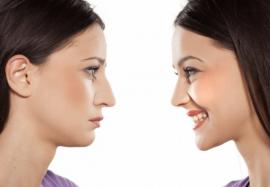 Стоит ли сделать ринопластику или лучше не вмешиваться в состояние носа
