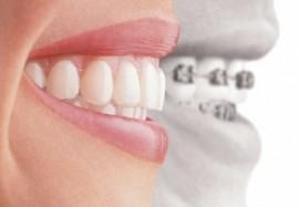 Стоматолог или гнатолог: кого выбрать, и чем они отличаются