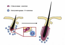 Т-клетки: активаторы роста волос