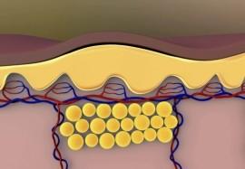 В помощь худеющим: как активировать процесс сжигания жира