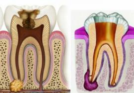 Воспаление корня зуба: в чем причины и как лечить