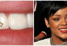 Все тонкости зубных аксессуаров: скайсы