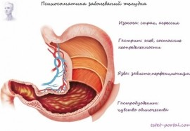 Заболевания желудка, которые возникают из-за переживаний