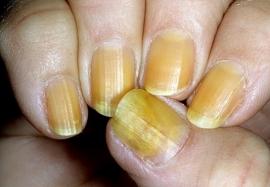 Желтые ногти как проявление грозного синдрома